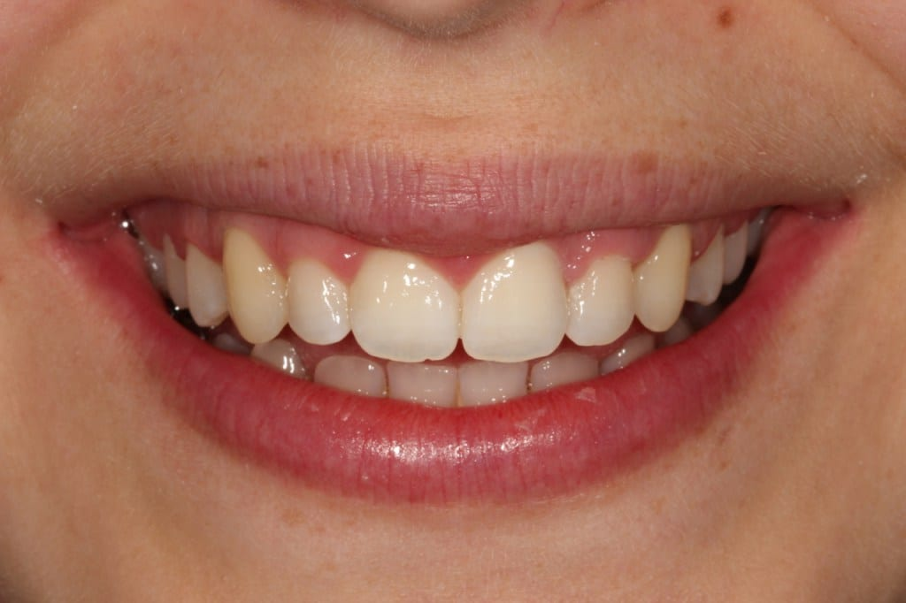 Invisible Braces, Teeth Straightening Treatment, Dr Gurs Semi Cosmetic Dentist London