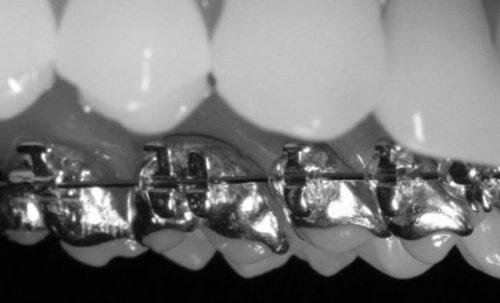 Lingual Braces, Dr Gurs Sehmi, Cosmetic Dentist, London