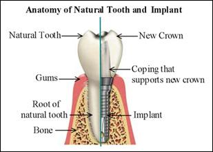 implant-diagram