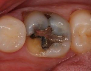 fractured-molar
