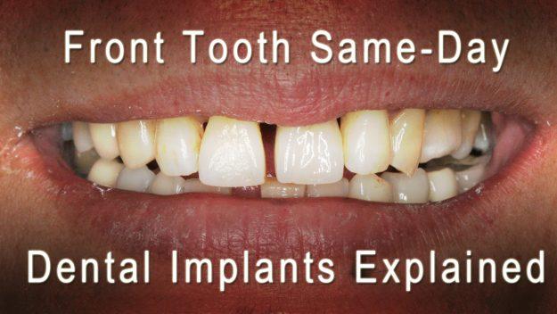 Dental Implant Dentist in London