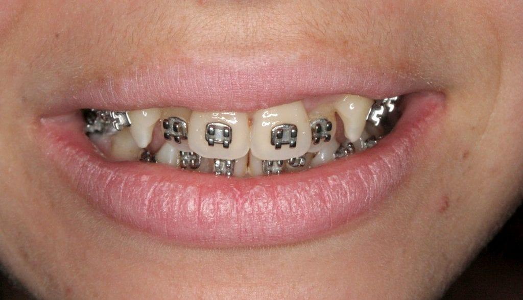 Ceramic Brace treatment London, Dr Gurs Sehmi