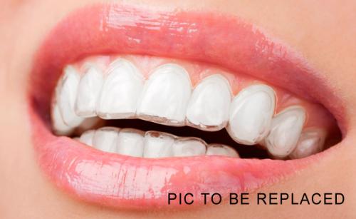 ceramic braces, Dr Gurs Sehmi, London