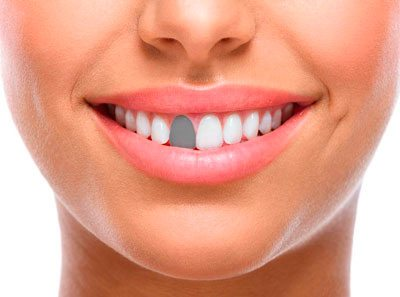 Single Front Denture Treatment London