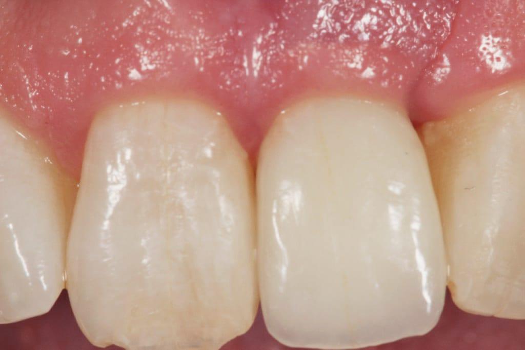 dental implant treatment, Dr Gurs Sehmi Cosmetic Dentist