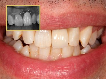 dental implant treatment, Dr Gurs Sehmi Cosmetic Dentist