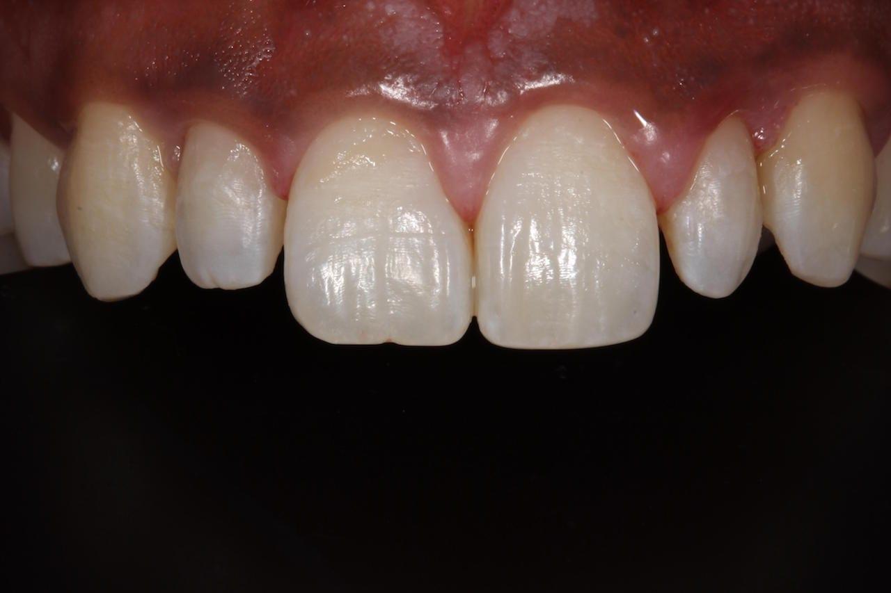 Cosmetic Dentist London, Dr Gurs Sehmi